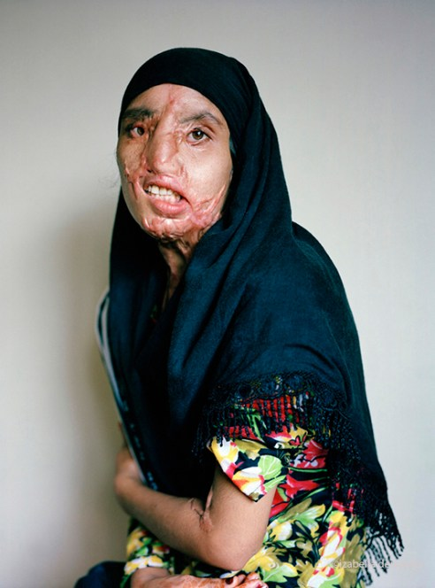 17 years old, 13 operations. Attacked 2008 by her cousin who wanted to marry her. The attack happened while she was asleep, nine days before her wedding.
