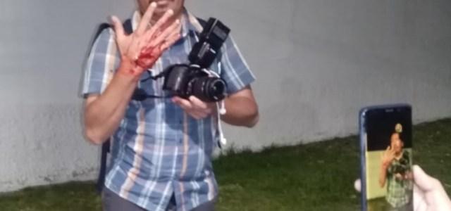 A  8 meses del certero disparo contra reportero gráfico Jorge Cerpa, desde la VI División, caso no avanza ni se hace justicia
