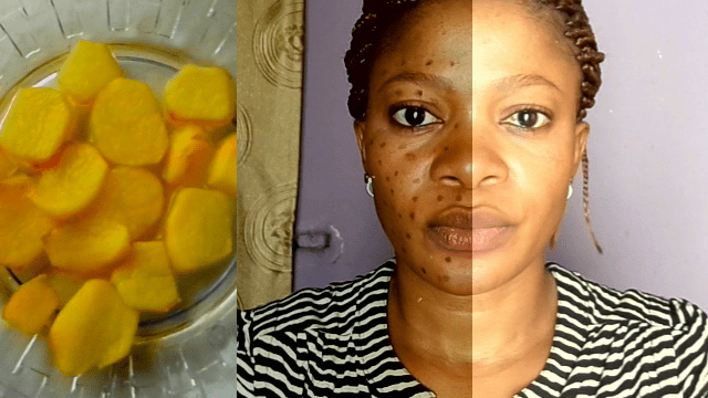 how to get rid of acne using home remedies