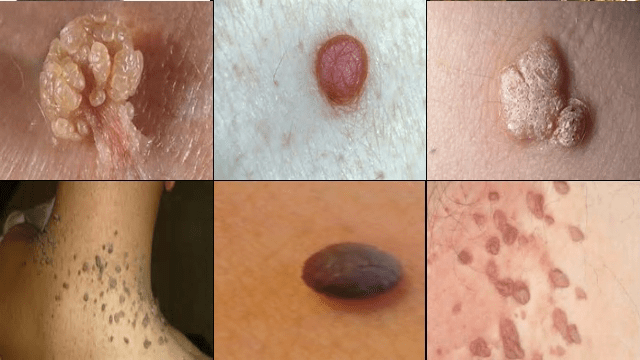Something is. picture of cancerous moles by the anus