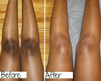 IN Just 2 Days Remove Dark Elbow Use Colgate Toothpaste