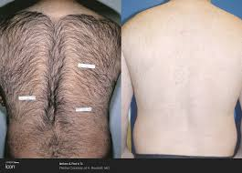 Remove All Unwanted Hair Permanently