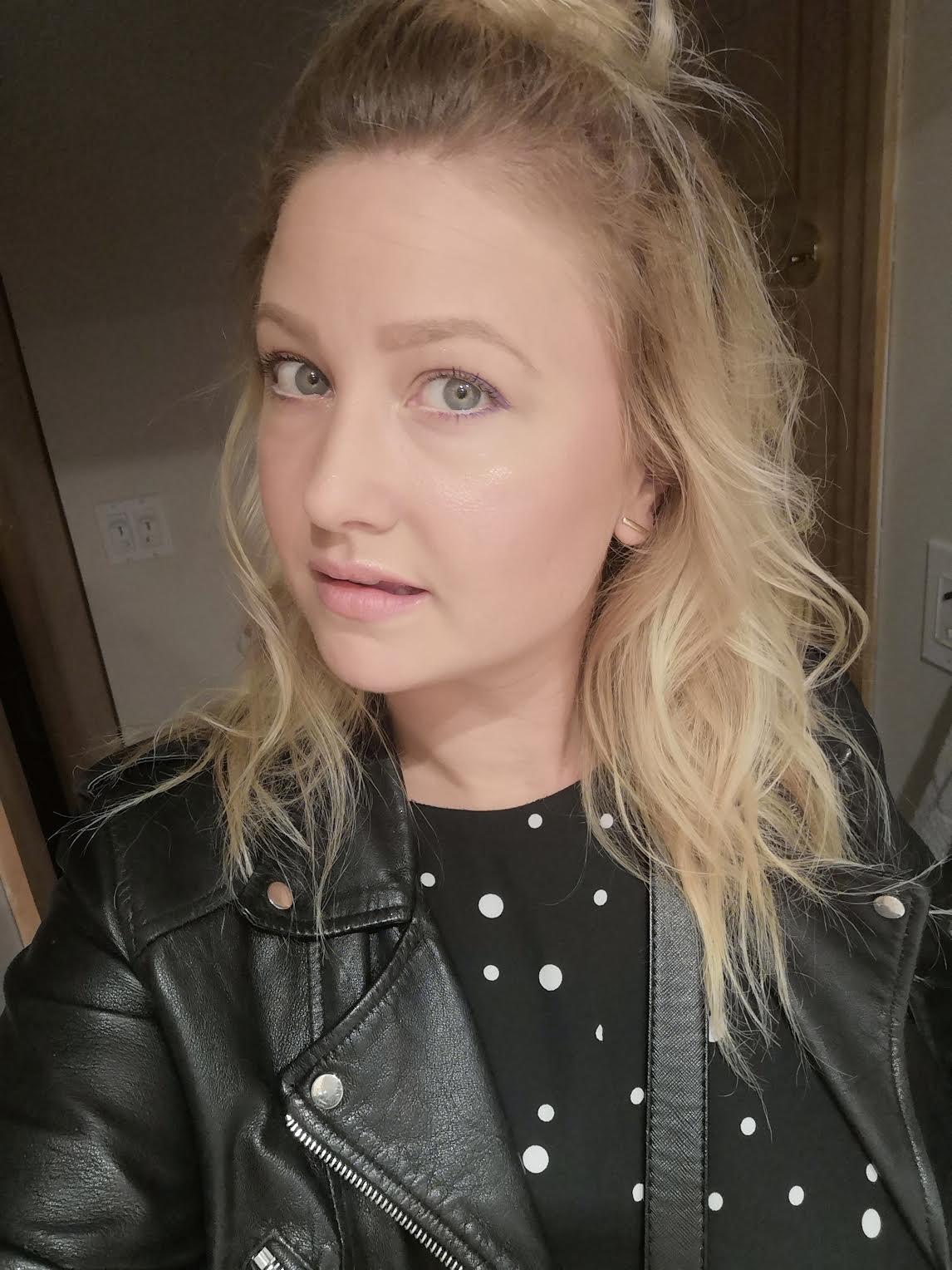 face fillers edit seven toronto 2018
