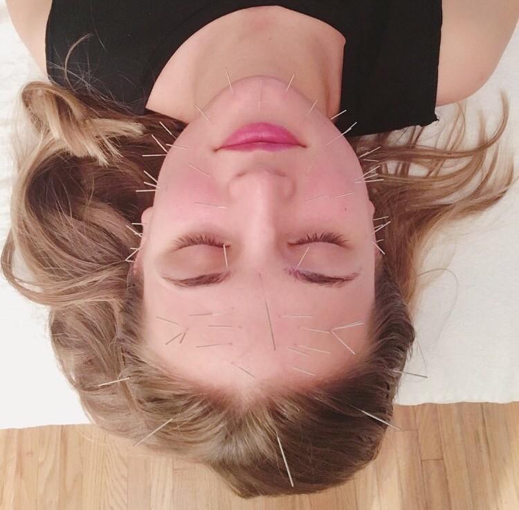 Kacie - Silk + Palm Acupuncture Facial Toronto