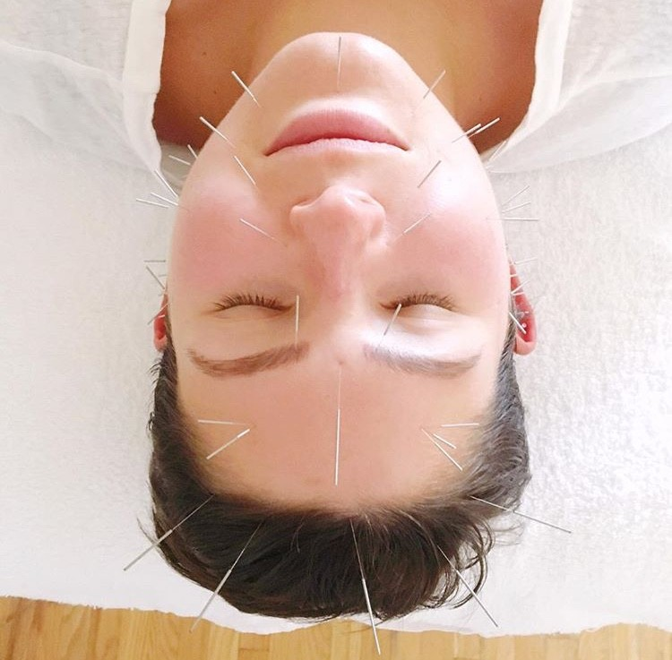 Kacie - Silk + Palm Acupuncture Facial Toronto