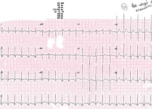 ECG post vagal maneouvre
