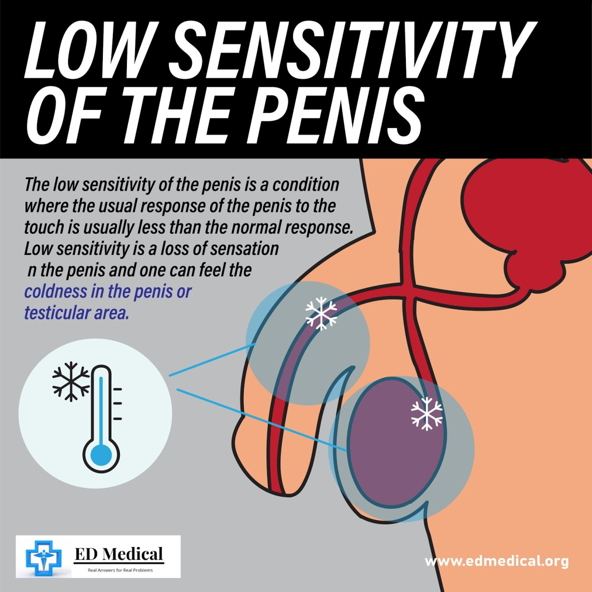 Low Sensitivity of the penis