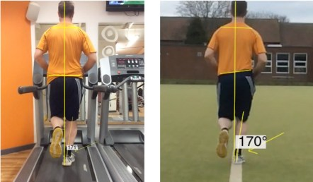 Treadmill vs Astro midstance