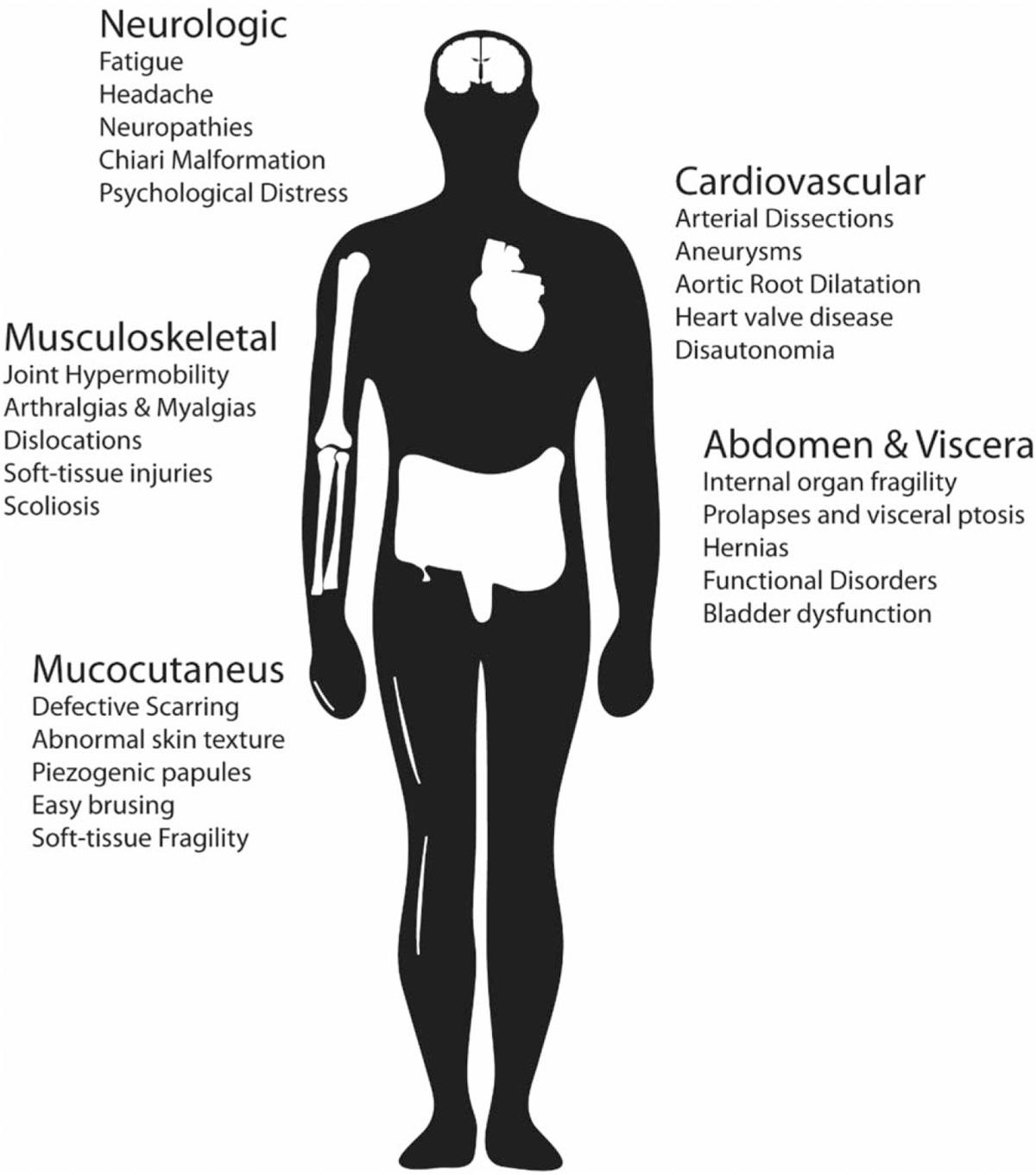Full Body Range Of Eds Health Issues