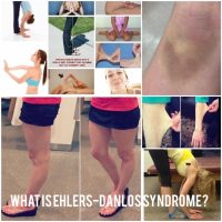What are Ehlers-Danlos syndromes?