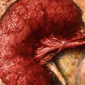 Patrón Vegetariano en la Enfermedad Renal Crónica; propuestas de abordaje Por: Iván Osuna