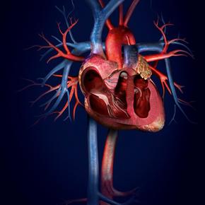 Manejo Nutricional del Paciente Pediátrico con Cardiopatía Congénita Por: Rita Godoy