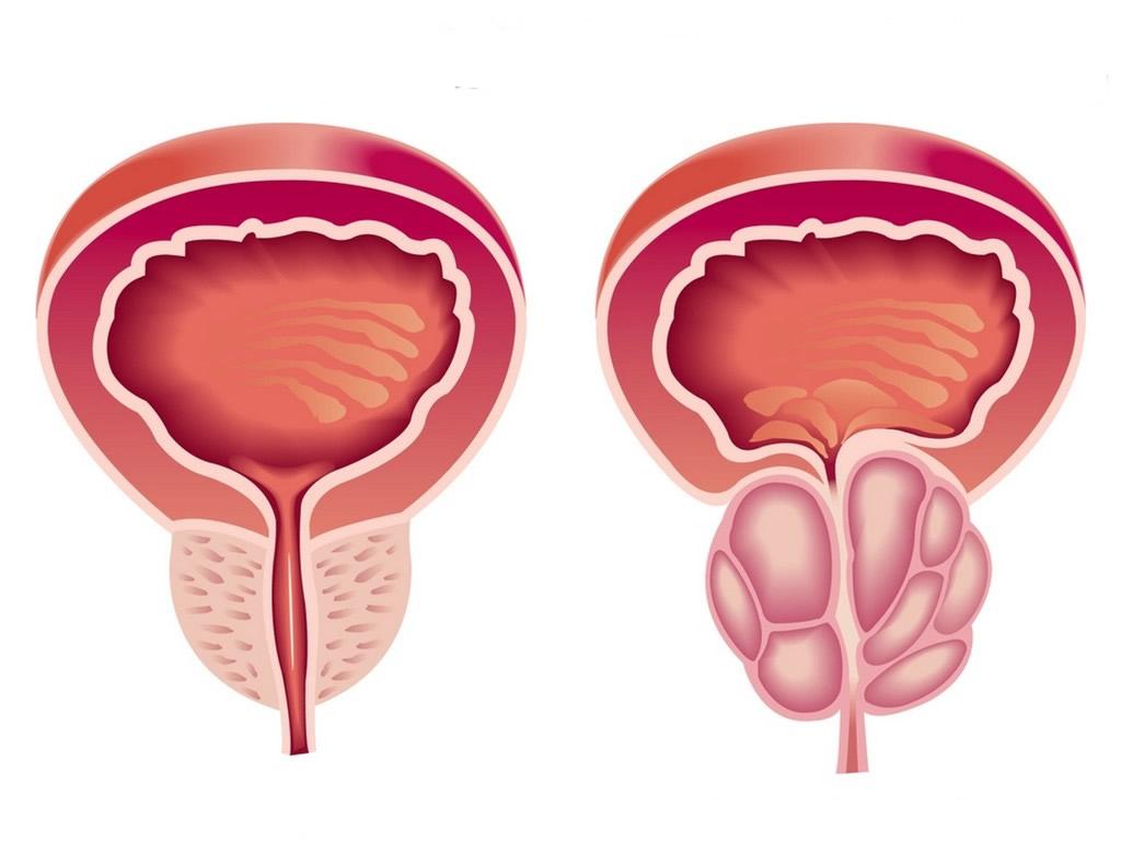 como curar a hiperplasia prostática benigna