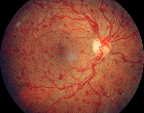 Oclusão Venosa da Retina