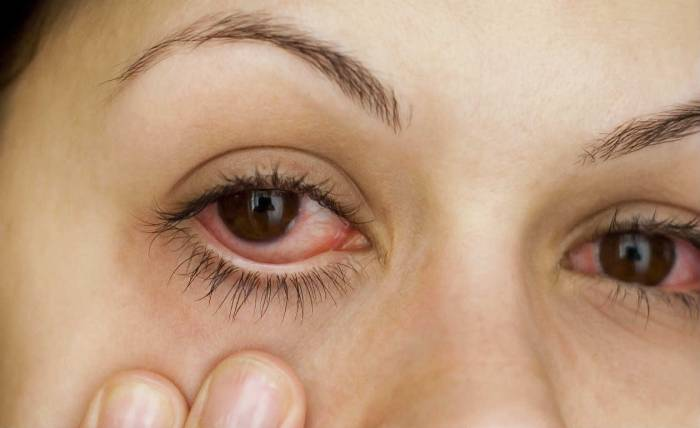 Inflamação nos olhos: fique atento aos sintomas