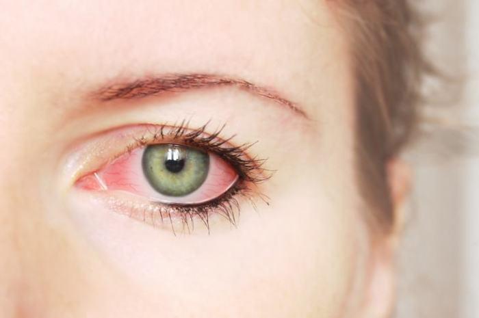 Quatro sinais que podem indicar a existência de um tumor ocular