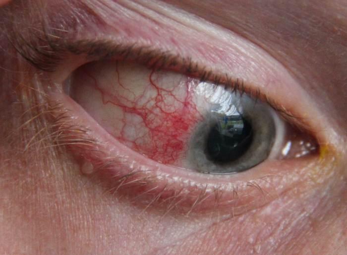 Esclerite: uma doença inflamatória que pode comprometer a sua visão