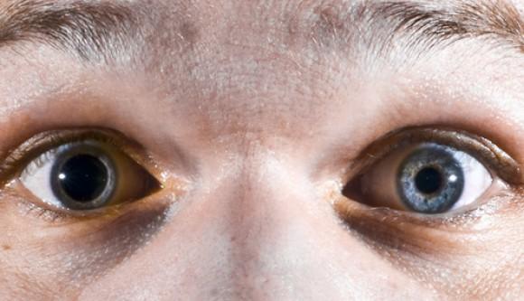 Por que nossas pupilas mudam de tamanho?