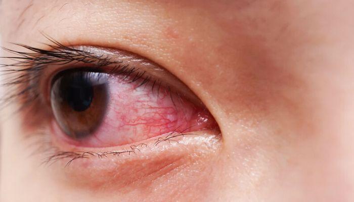 Toxoplasmose - Como ela pode afetar a retina?