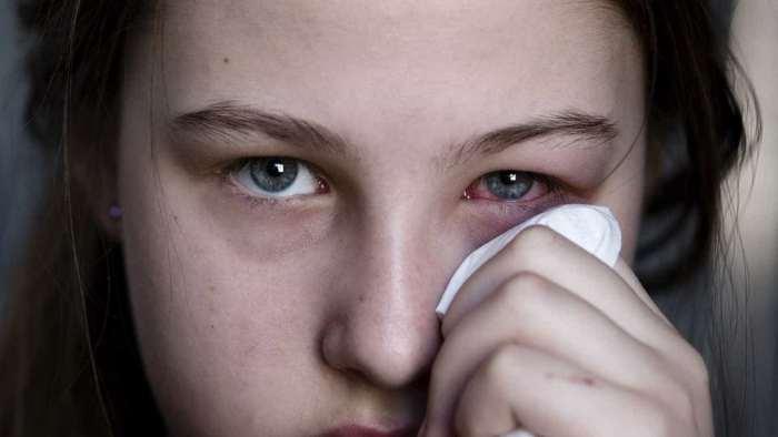 Ardor nos olhos pode ser um sintoma do coronavírus?