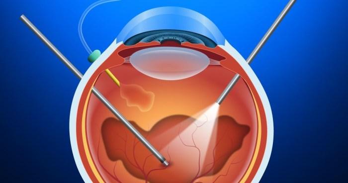 Vitrectomia - Saiba como é o pós operatório