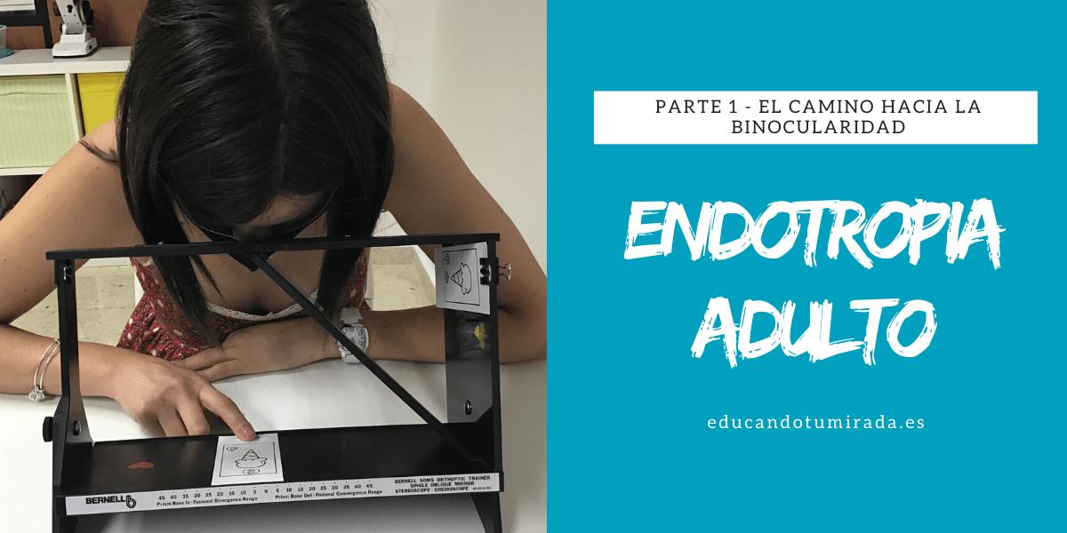 Endotropia Adulto | en Educando tu mirada