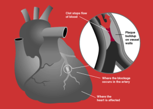 What Is a Heart Attack?  Definition, Causes, Symptoms & Treatment | Study