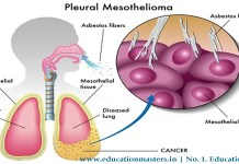 What is Mesothelioma