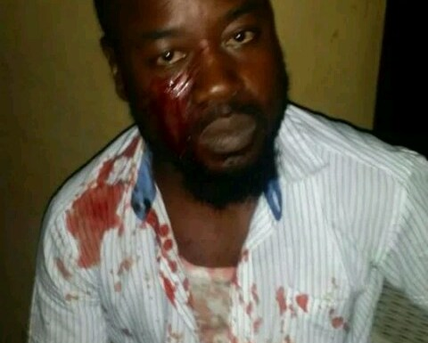 UNILAG lecturer stabs student, detained by school security