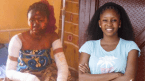 Nigerian Cook Shows Off Her Recent Looks After Suffering Cooking Gas Explosion