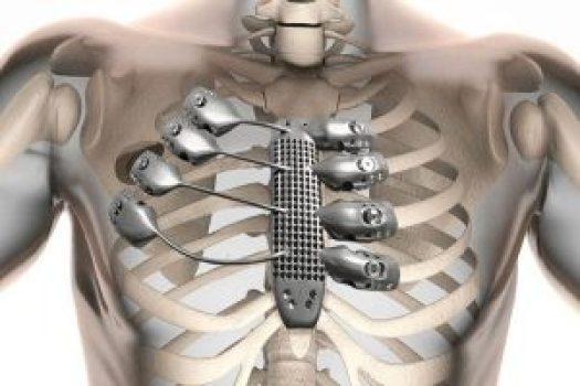 3d printed ribcage