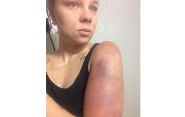 Oma mees peksis ja vägistas soome naist, naine pani pildid internetti