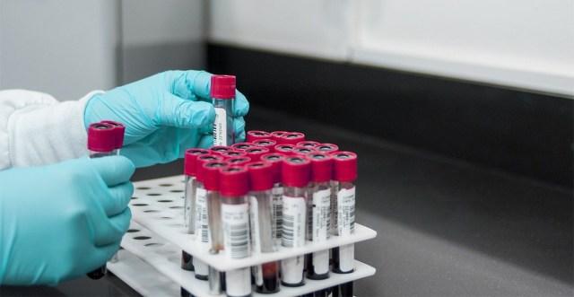 Stora Enso tehaseobjektidel Oulus avastati 150 koroonaga nakatumist – kust nakkus tuli, pole teada