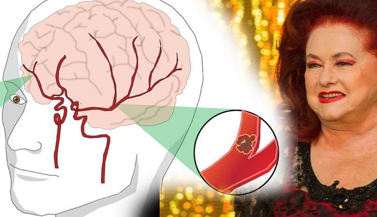 AVC, maladies vasculaires, attaques cérébrale
