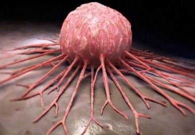 Le cancer: comment il apparait, les facteurs qui le déclenche et comment il se propage