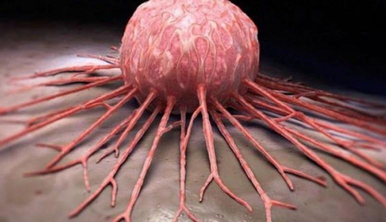 cancer, le cancer, les cellules cancereuses, les causes de cancer, traitement cancer