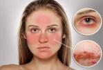 La rosacée: causes et facteurs de risque, symptômes, diagnostic, traitements