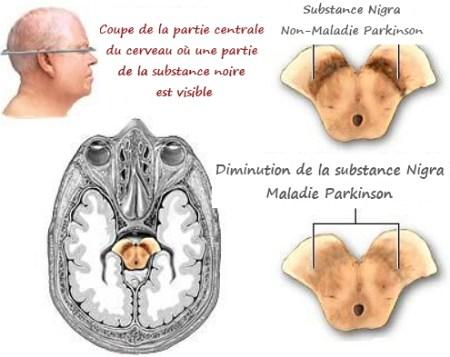 la dopamine, les neurotransmetteurs, la maladie de Parkinson, Parkinson, la démence, traitement de Parkinson, comment traiter Parkinson, la vie avec Parkinson