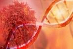 Attention au stress! Il aide les cellules cancéreuses à se développer