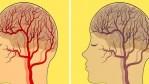 Des aliments qui peuvent affecter notre cerveau