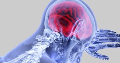 AVC, maladies cardiaques, maladies du cœur, accident vasculaire cérébral, maladies neurologiques,