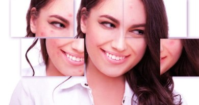 l'acné, comment se débarrasser de l'acné, peau, boutons, régimes alimentaires