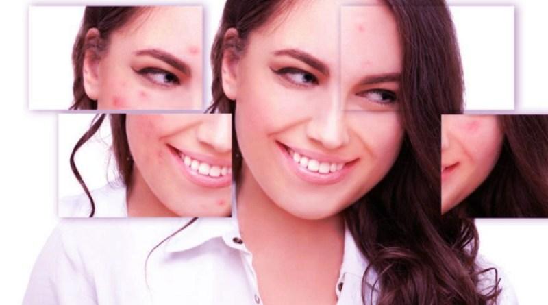 Qu'est-ce que favorise l'apparition de l'acné?