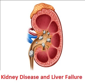 How to treat Kidney Disease and Liver Failure with Natural Herbs
