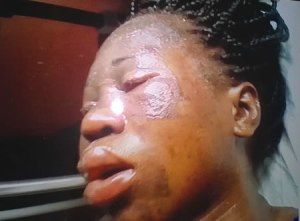 Woman bathed with hot oil loses pregnancy, all because of puff puff