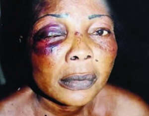 Olasunkanmi Lawal's battered eye