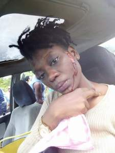 Lady snaps photo from a horrific accident scene that claimed lives and posted it online. Graphic content