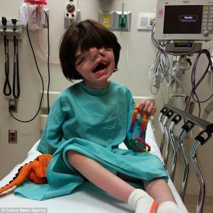Boy born with two faces survives all odds
