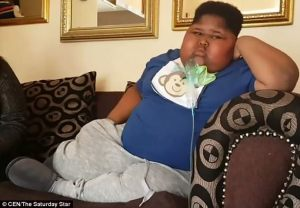 See the 10-year-old obese boy who is addicted to eating toilet paper and cannot stop it (See photos)