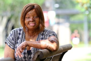 , Sosoliso Crash Survivor, Kechi Okwuchi Comes 6th In The America's Got Talent That Just Got Concluded, Effiezy - Top Nigerian News & Entertainment Website